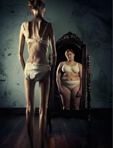 Лечение анорексии Киев